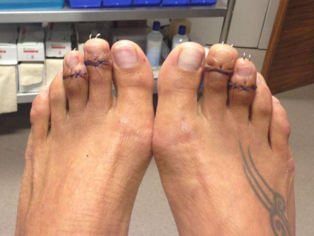 Cirugía Cenicienta pies (10)