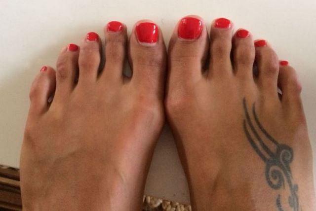 Cirugía Cenicienta pies (9)