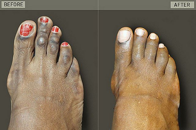 Cirugía Cenicienta pies (8)