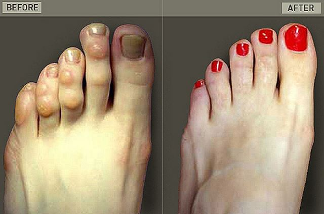 Cirug a cenicienta procedimiento extremo para acortar los for Operacion de pies