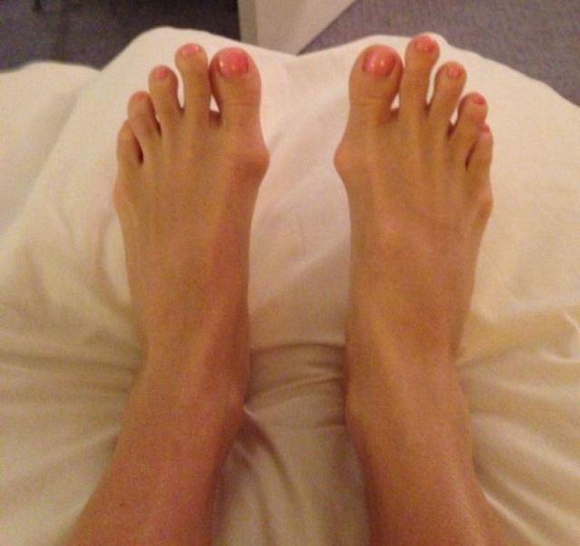 Cirugía Cenicienta pies (6)