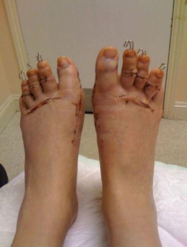 Cirugía Cenicienta pies (5)