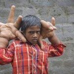 Niño padece rara enfermedad de manos gigantes