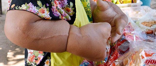 macrodistrofia lipomatosa Duangjay Samaksamam (8)