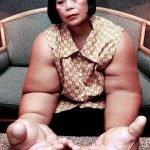 Duangjay Samaksamam, la mujer con los brazos más grandes del mundo