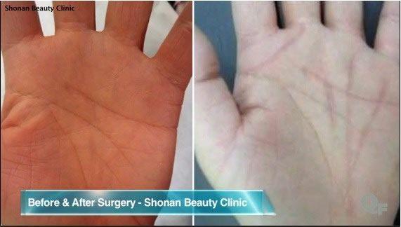 lineas manos cirugia
