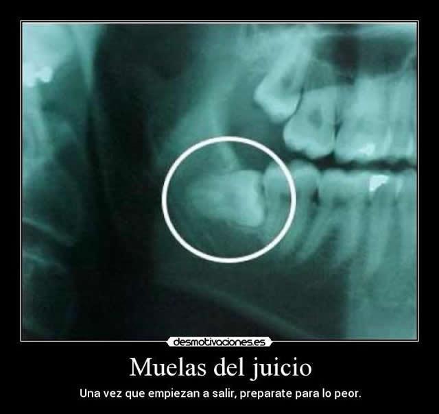 Marcianadas_158_121114 (70)