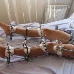 Romperse las piernas por unos centímetros extras, tendencia en auge en el mundo de la cirugía estéti...