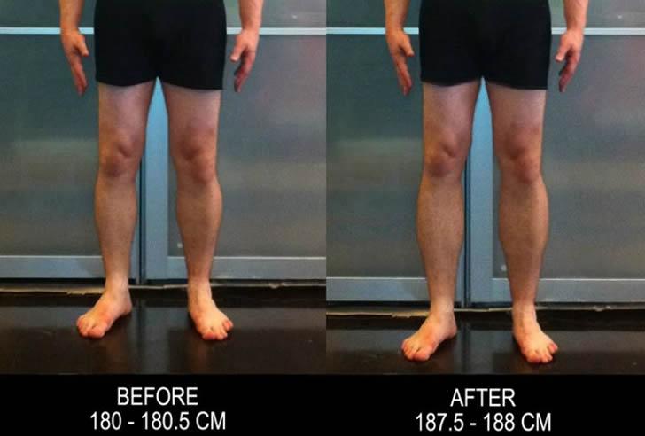cirugia alargamiento piernas (2)