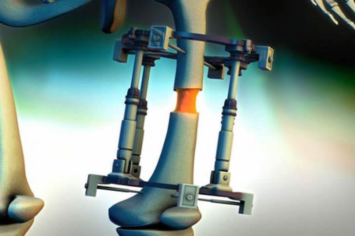 cirugia alargamiento piernas (3)