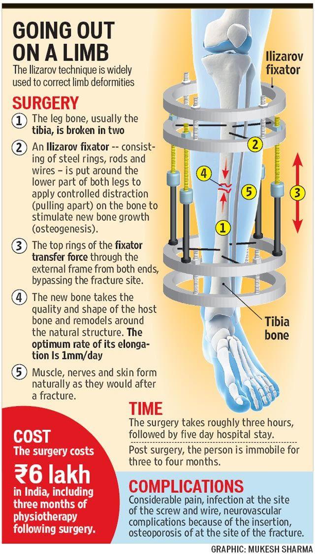 cirugia alargamiento piernas (4)