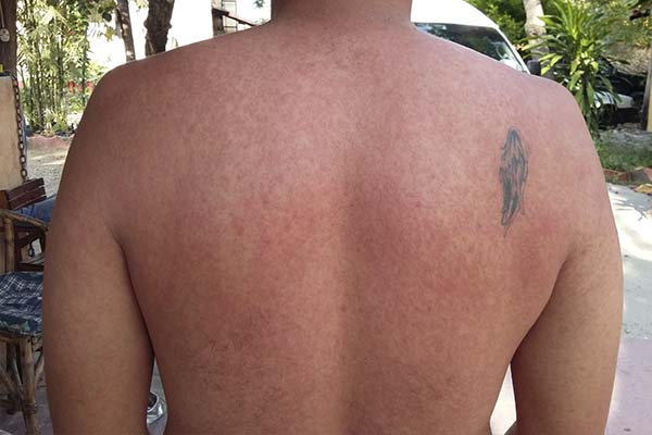 Ronchas causadas por la chikungunya