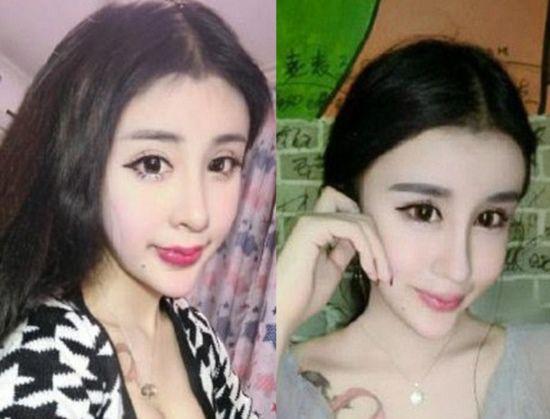 cirugia plastica china v line (4)