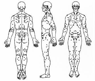 cuerpo acupuntura