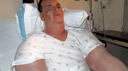 enfermedad Clarkson