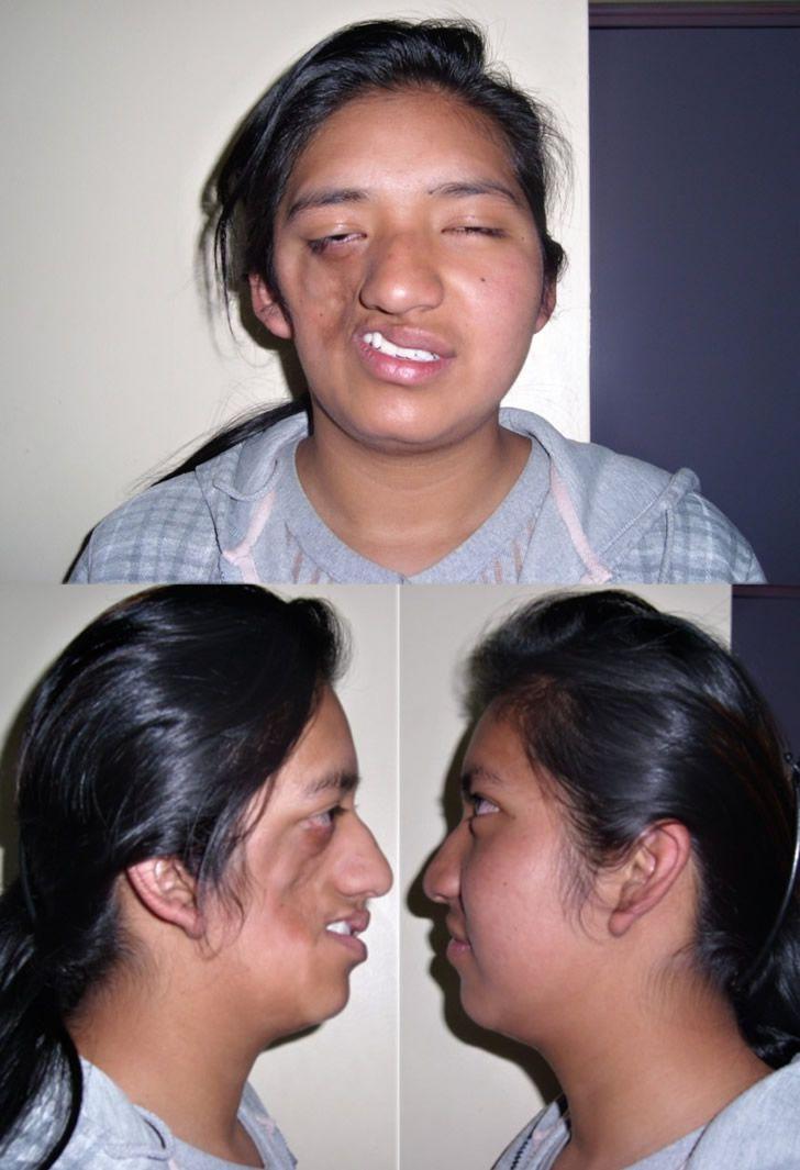 síndrome de Parry-Romberg