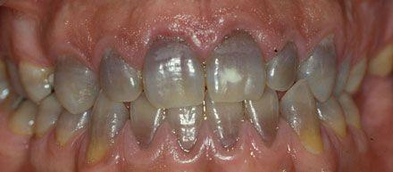 manchas dentales .tetraciclina