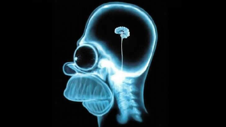 homero cerebro radiografia