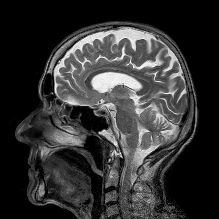 mari cerebral