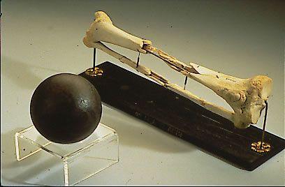 Hueso de la pierna apuntada de Sickles junto a una bala de cañón. El general donó su pierna al Museo Nacional de Salud y Medicina de Maryland, donde aún pueden apreciarse los huesos en exposición.