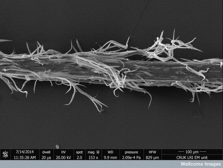 cabello microscopio