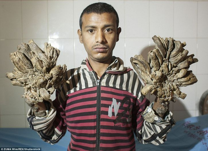 hombre arbol indonesia Abul Bajandar (2)