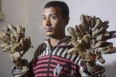 Este joven tiene pies y manos como raíces de un árbol