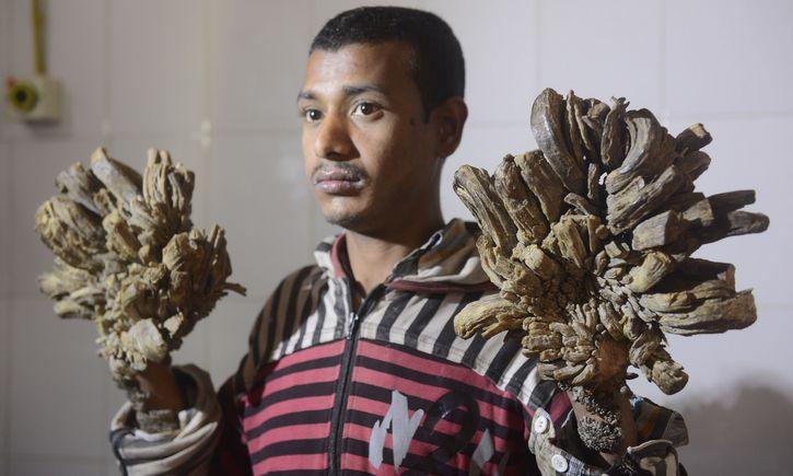 hombre arbol indonesia Abul Bajandar (4)