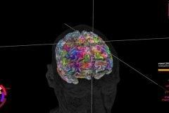 Mapa 3D del cerebro muestra cómo almacenamos palabras