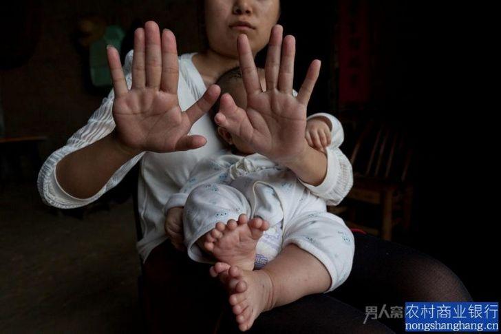 polidactilia honh hong china (2)