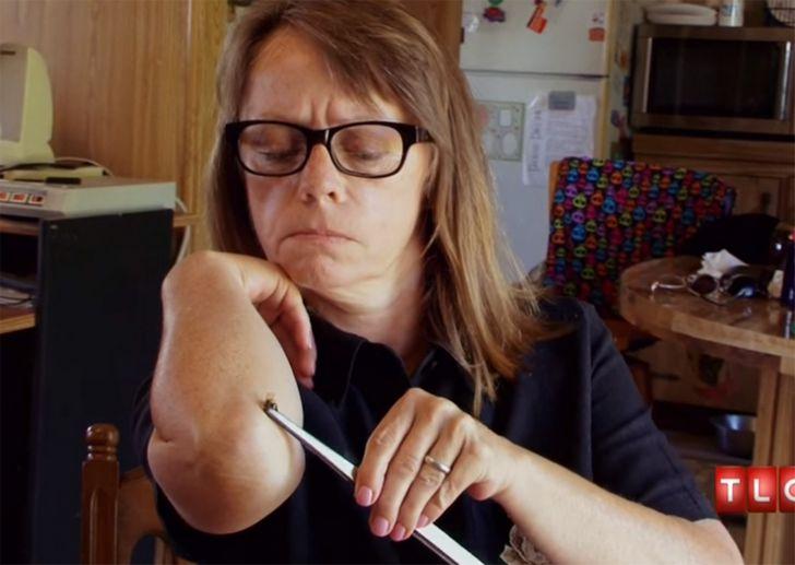 Margaret adicta picadura de abejas