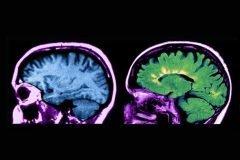 Innovador tratamiento contra esclerosis múltiple logra excelentes resultados