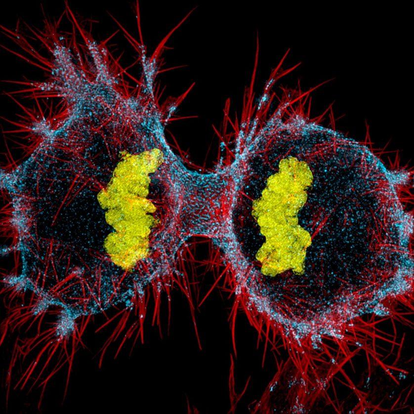 foto-microscopica-celula-humana-hela-838x838