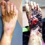 A esta adolescente le amputan la pierna a causa de una uña encarnada