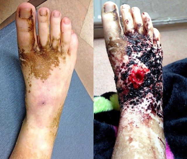 El síndrome de dolor regional complejo en el caso de Hannah le provocó dolores insoportables.