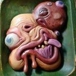 Encuentran cerebro y cráneo dentro de ovario en una joven