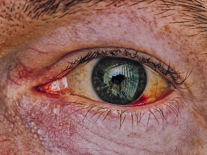 ojo reflejo zombi