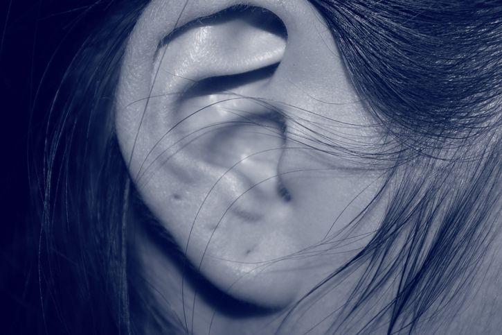 oreja deforme lobulo pegado