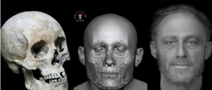 rostro hombre reconstrucción