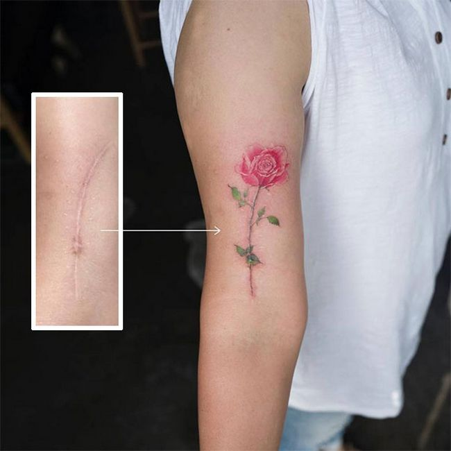 cicatrices convertidas en tatuajes (1)