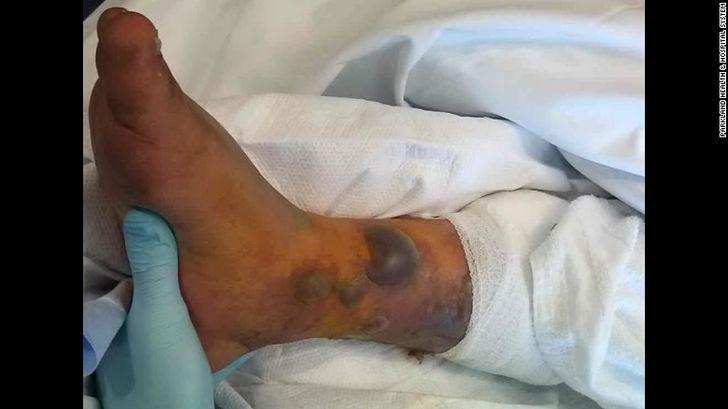 shock septico hombe con tatuaje (2)