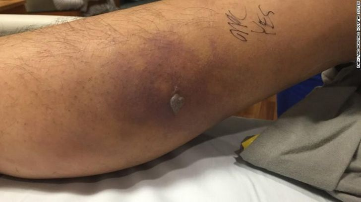 shock septico hombe con tatuaje (3)
