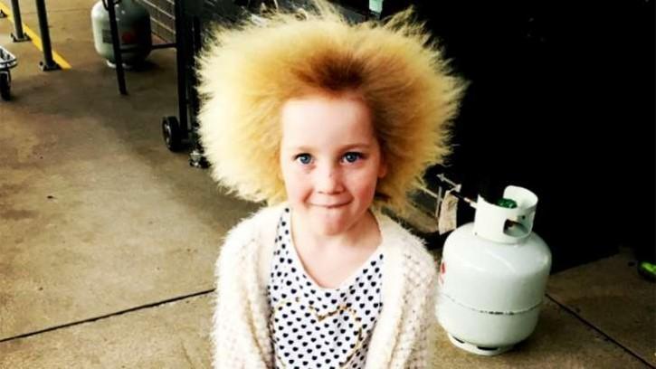 Shilah Yin cabello impeinable sindrome (3)