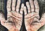manos destruidas por la humedad