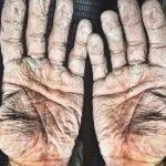Atleta muestra fotografía de sus manos tras remar mil kilómetros