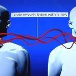 trasplante de cabeza ilustracion