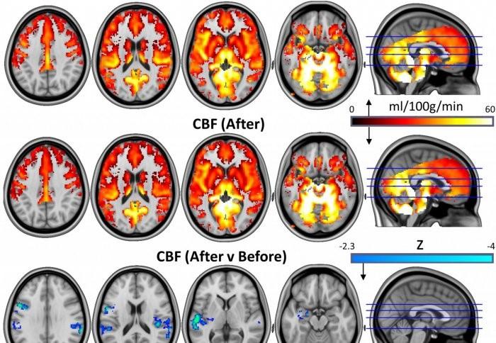 IRMf efectos psilocibina pacientes depresion