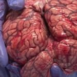 Profesora de anatomía muestra las estructuras de un cerebro fresco