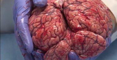 cerebro fresco