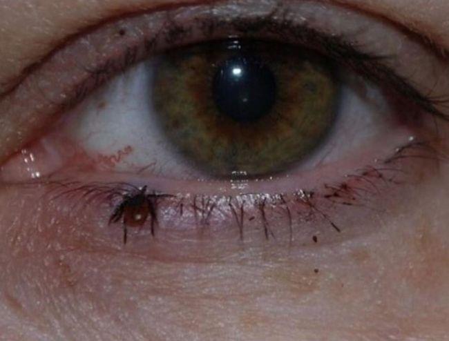 imagenes que provocan agonia (14)